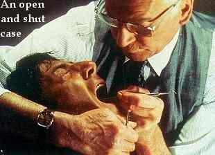 Dustin Hoffman getting dental treatment in the film Marathon Man.